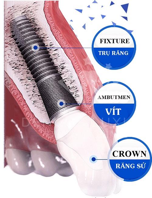 rang-su-implant-gia-bao-nhieu-1