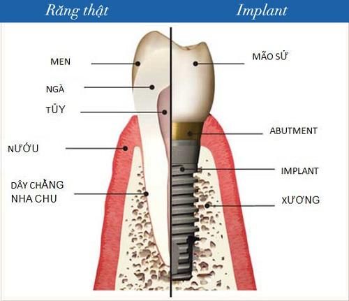 Cấu tạo một răng implant