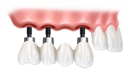 Cấy ghép Implant OP300 2