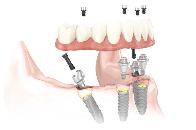 Cấy ghép Implant Tekka 2