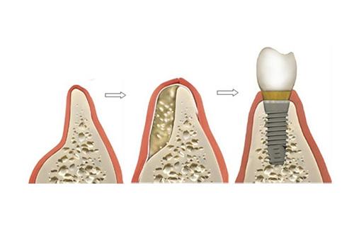 có-nên-trồng-răng-implant-2