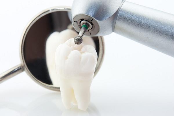 Công nghệ cấy ghép Implant 5
