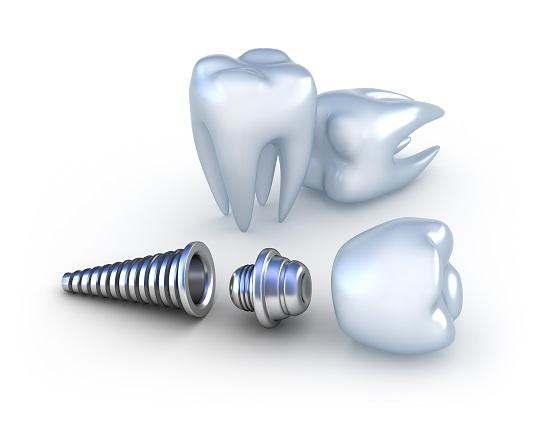 Ghép răng implant bao nhiêu tiền