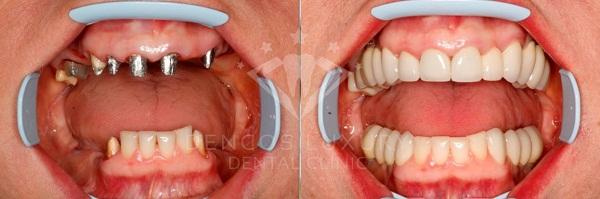 kết quả khách hàng cấy ghép implant