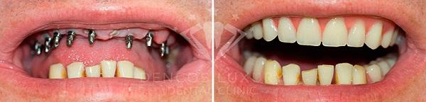 kết quả khách hàng cấy ghép implant 2