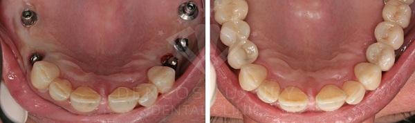kết quả khách hàng cấy ghép implant 8