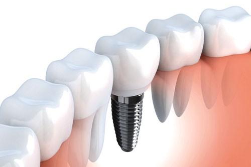 Làm implant giá bao nhiêu