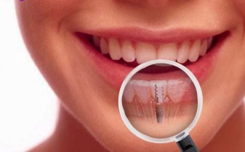 Răng implant là gì?