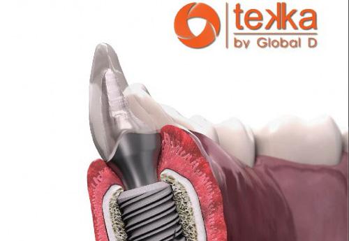 trồng răng Implant giá bao nhiêu 2