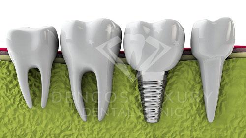 Cấy ghép răng implant có tốt không 2