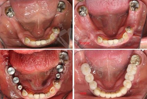 Quy trình làm răng implant được thực hiện ra sao 3