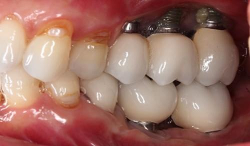 biến chứng implant