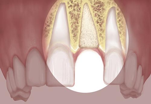 tiêu-xương-ổ- răng