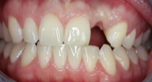 tiêu-xương-ổ-răng-2