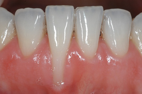 tiêu-xương-ổ-răng-3