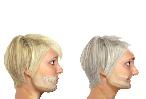 tiêu-xương-ổ-răng-4
