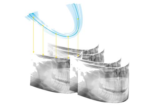 cấy ghép răng bằng phương pháp implant