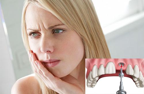 cấy răng implant có đau không