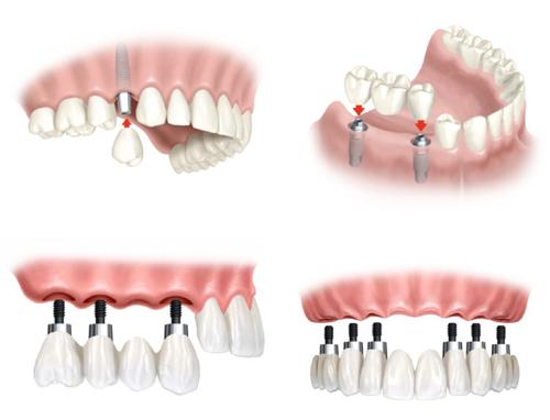 Chi phí cấy ghép răng implant bao nhiêu