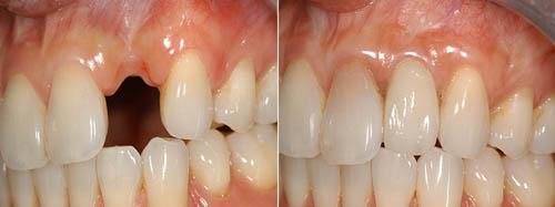 địa chỉ trồng răng implant uy tín tại hà nội 2