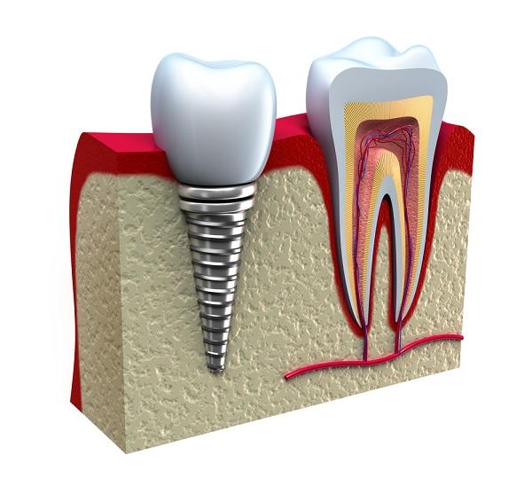 Giá răng sứ implant bao nhiêu