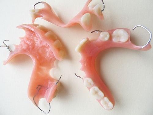 mất 2 răng cửa 3