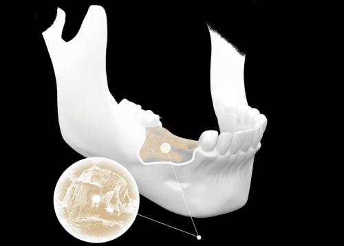 hiện-tượng-tiêu-xương-hàm