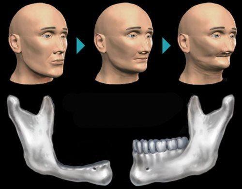hiện-tượng-tiêu-xương-hàm-2