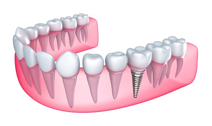 ky-thuat-trong-rang-implant-2