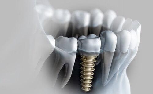 trồng răng cửa cố định 3
