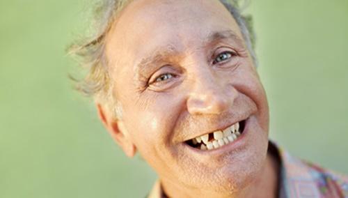 mất răng và hậu quả 2
