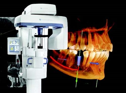 mất răng và hậu quả 4