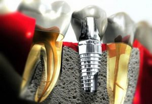 ky-thuat-cam-ghep-rang-implant-4