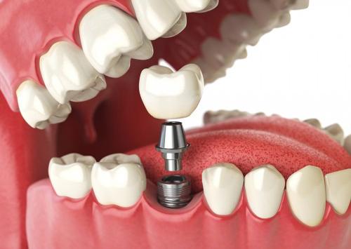 chi phí làm răng implant