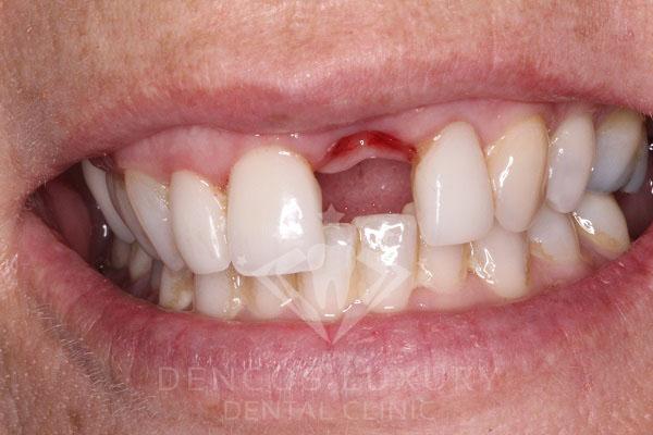 mất 2 răng cửa