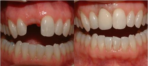 ghép răng implant là gì 3