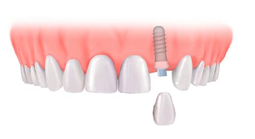 lưu ý khi cấy răng implant