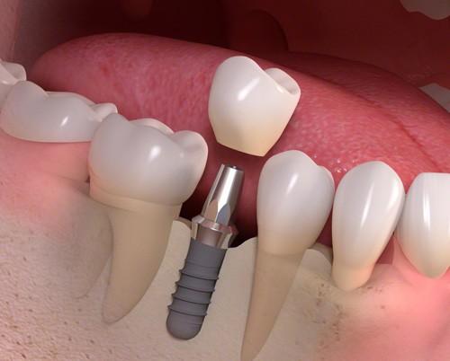 Cắm răng implant là gì