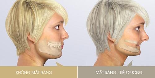 thời gian cấy ghép răng implant