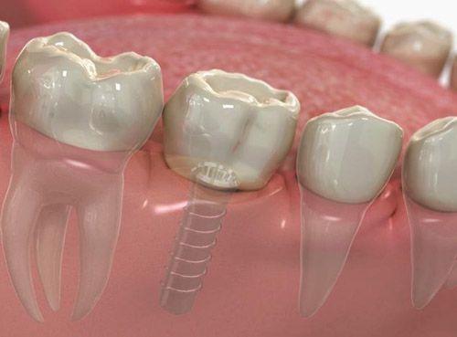 giá răng implant