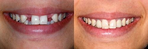 răng giả dùng được bao lâu 2