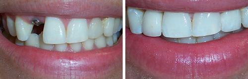 răng gia dùng được bao lâu 3