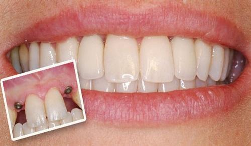răng giả dùng được bao lâu 4