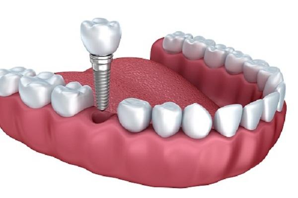 Trồng răng sứ implant 5