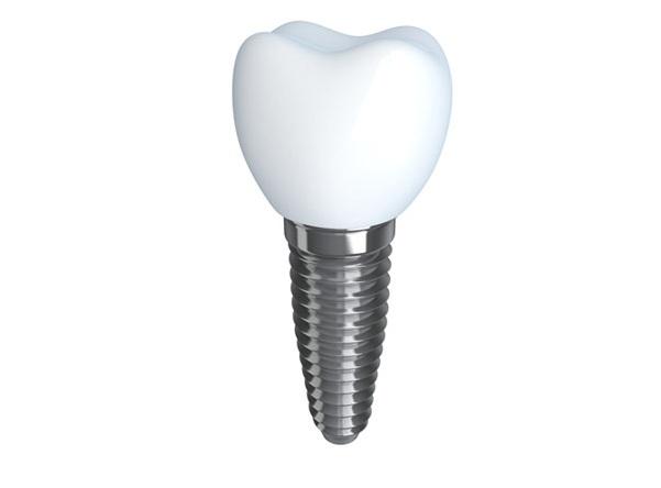 Trồng răng sứ implant 3