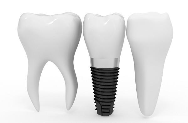Trồng răng sứ implant 2