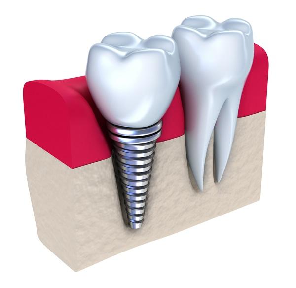 Trồng răng sứ implant