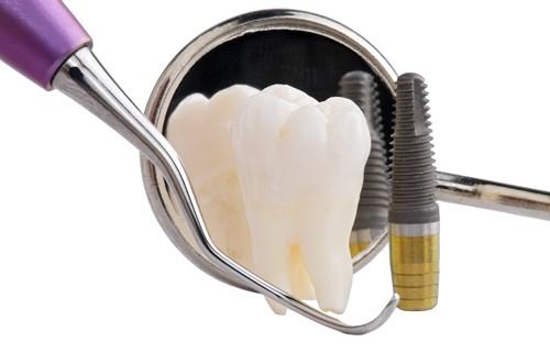 cấy ghép răng implant có ảnh hưởng gì không