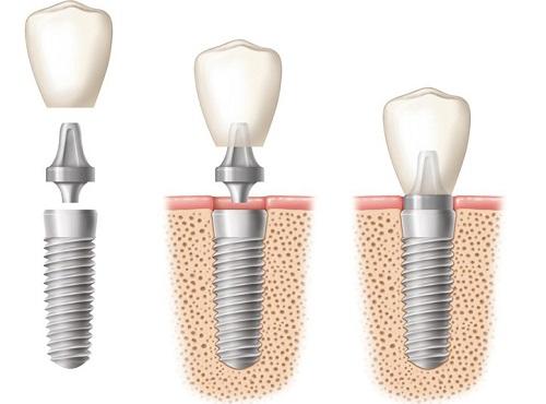 công-nghệ-làm-implant