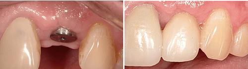 công nghệ trồng răng implant 3